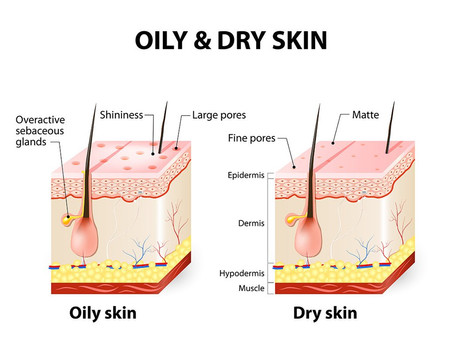 Oily vs. dry skin