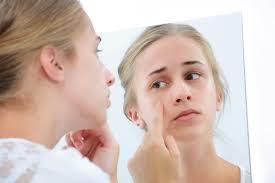 Acne Skin Care Regime