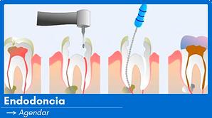 Endodoncia.png