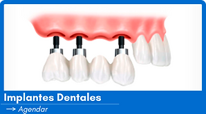 Implantes-Dentales.png