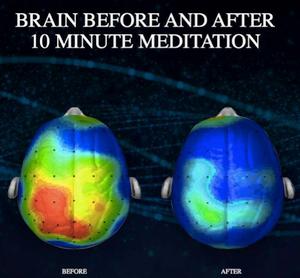 meditation brain relaxation