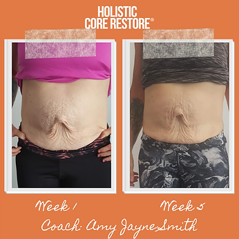 Before and After Diastasis Recovery