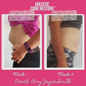 before and after diastasis recovery side
