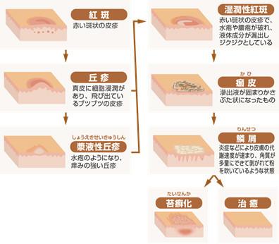 アトピー性皮膚炎と漢方療法