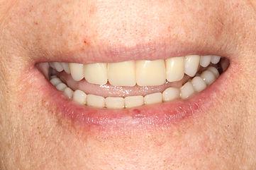 implante dentário importado