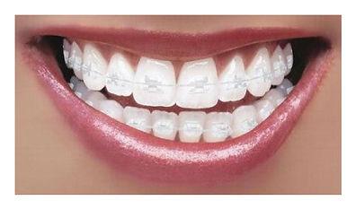invisalign, aparelho dentário, ortodontia, aparelho invisível, bucomaxilo