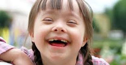 odontologa par pacientes especiais, sindrome de down, extraçã dentária