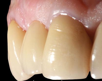 Implante dentário barrta da tijuc