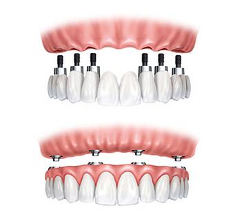 Prótese fixa implantes
