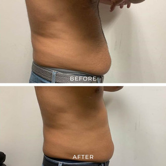 Slimming & Toning - Before & After
