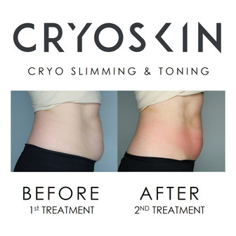 Slimming & Toning - Before & After 2 Treatments