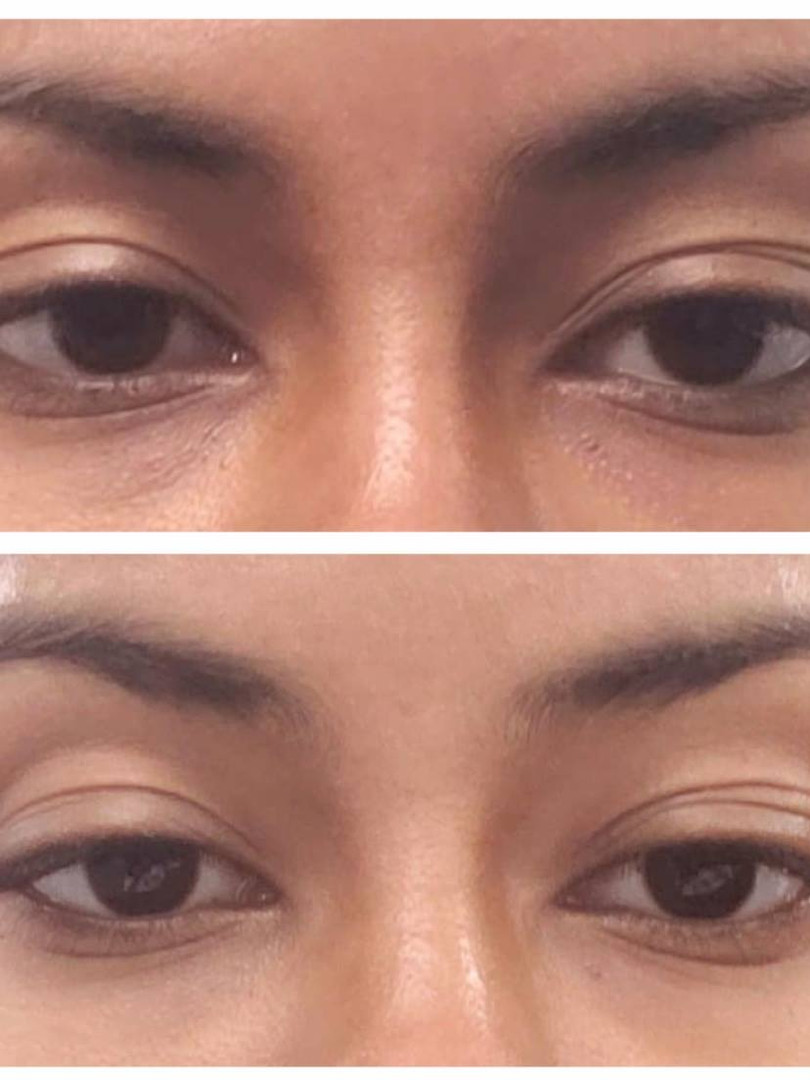 perk eye before and after.jpg