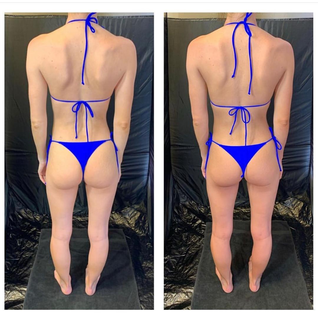 blue bikini before and after.jpg