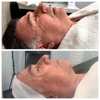 Facial - After 3 Sessions