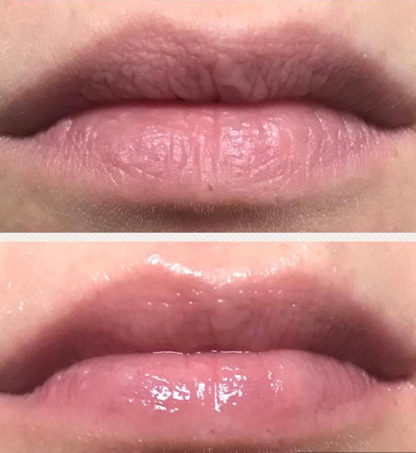 perk lip before and after 2.jpg