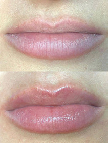 perk lip before and after.jpg