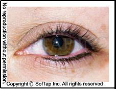 during eye.png