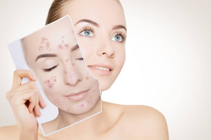 A facial designed to treat the root cause of acne by focusing on reducing inflammation.