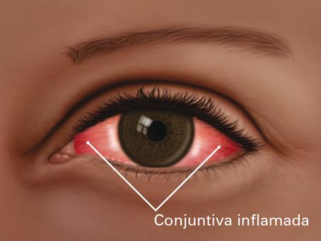 CONJUNTIVITIS (Ojo Rojo)