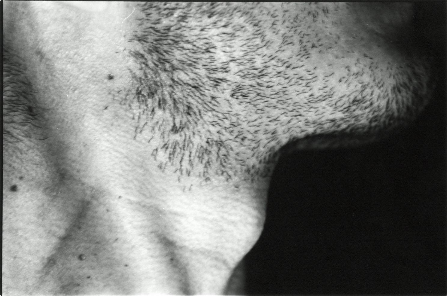 Skin No. 2