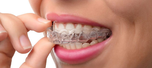 invisalign-dental-services-guelph-villag