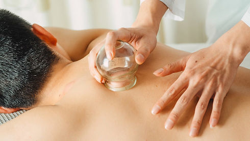 health-benefits-of-cupping.jpg