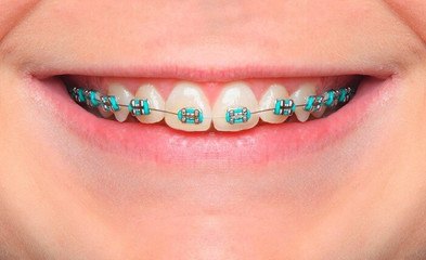 mejores-ortodoncistas-en-monterrey