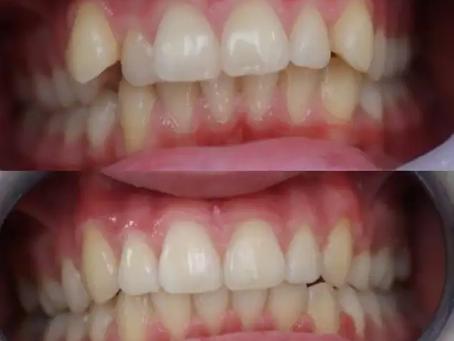 ¿Cuánto tiempo dura un tratamiento de ortodoncia? ¿Existe una duración mínima o máxima?