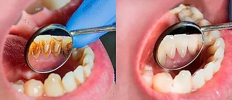¿En qué consiste una Limpieza Dental?