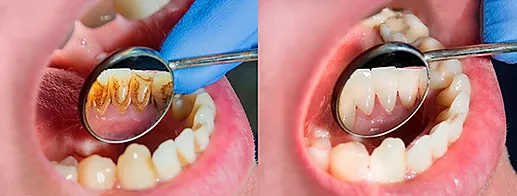 Limpieza Dental Monterrey