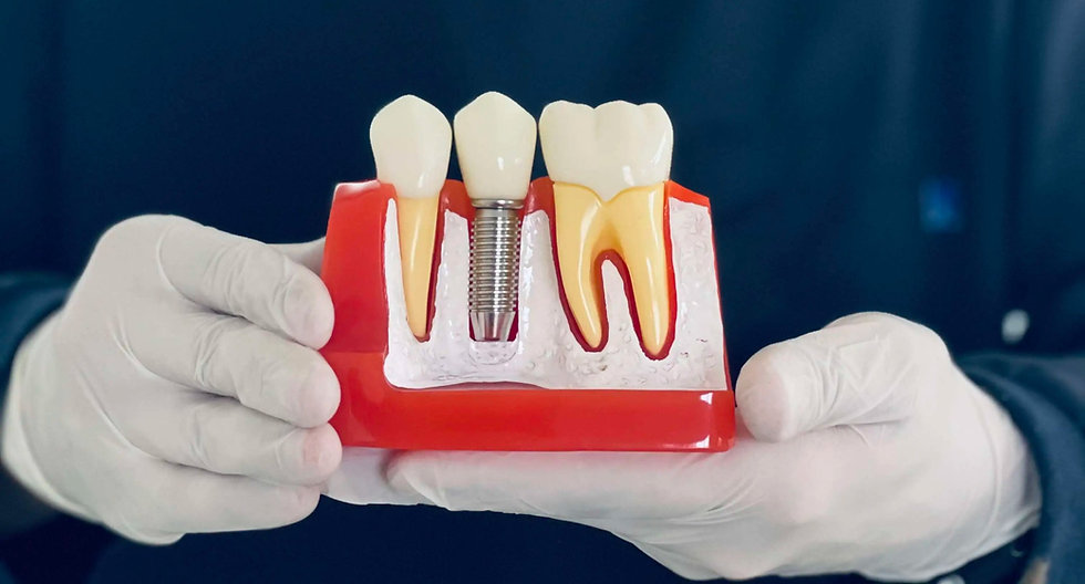 especialistas-en-implantes-dentales-monterrey