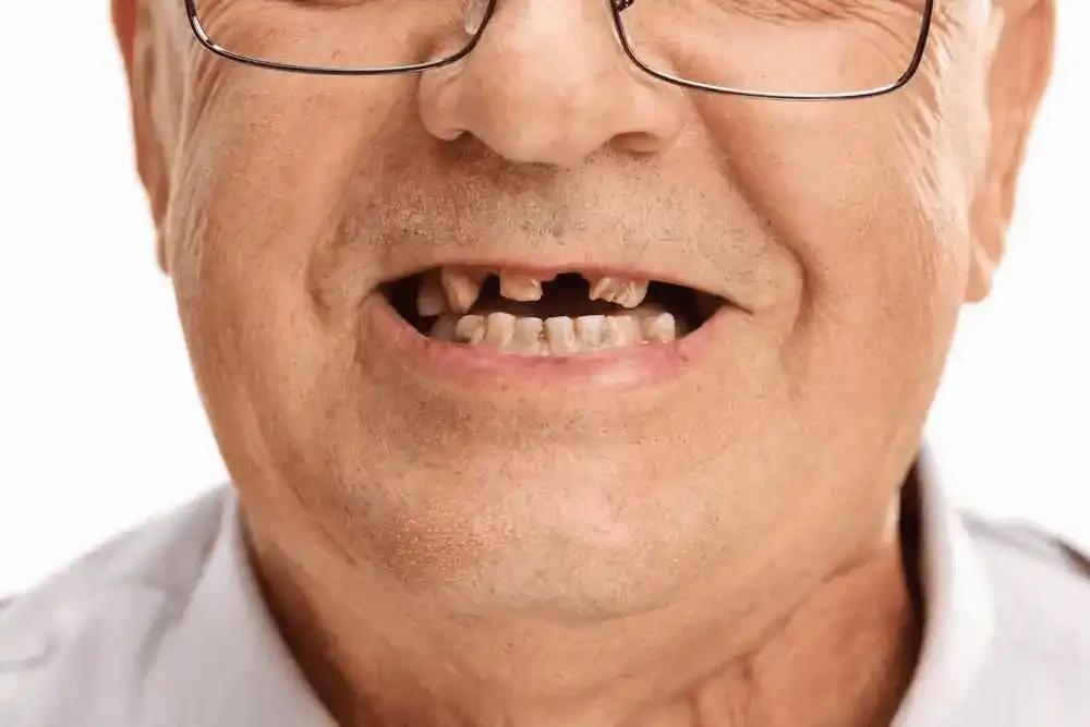 perdida-de-dientes-monterrey-protesis dental