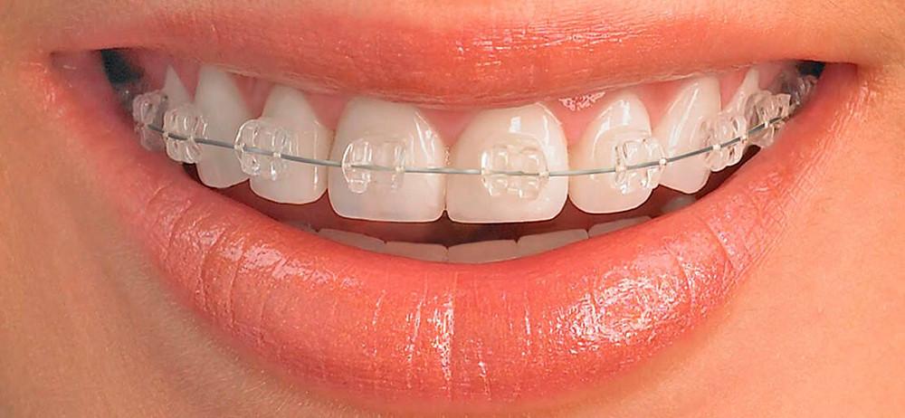 ortodoncia-en-monterrey