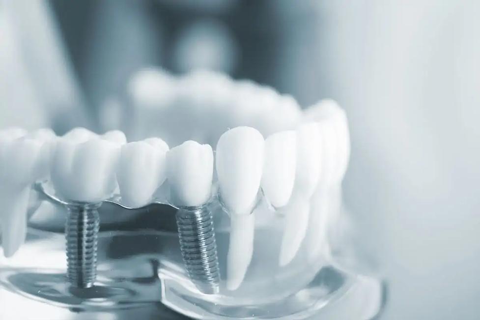implantes-dentales-monterrey