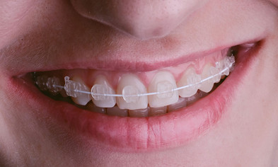 ortodoncia-estetica-monterrey