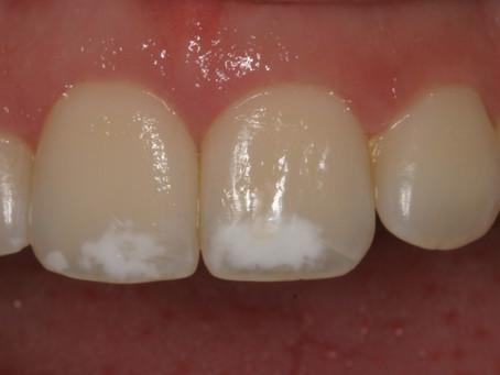 ¿Por qué tengo manchas blancas en los dientes?