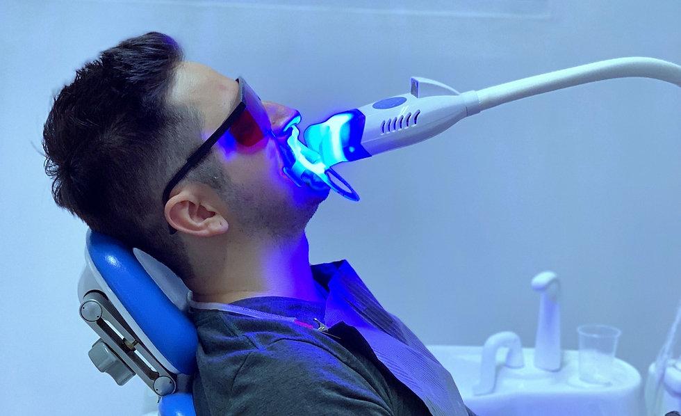 blanqueamiento-dental-en-monterrey