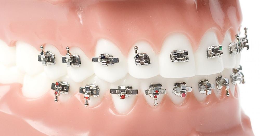ortodoncia-rapida-monterrey