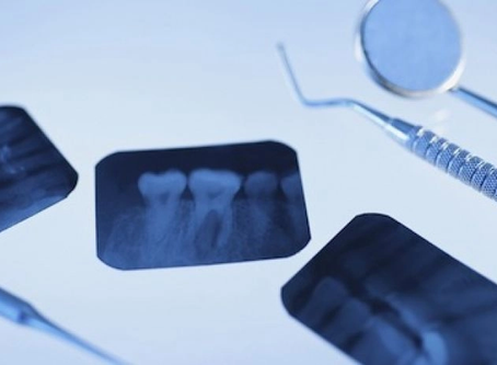 ¿Cuándo es necesaria una radiografía dental?