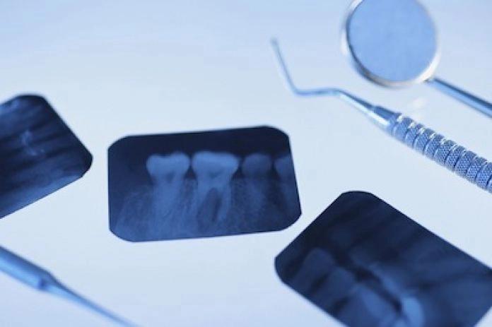 Radiografía dental dentalmedics dentista Monterrey