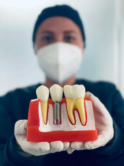 implantes-dentales-baratos-en-monterrey