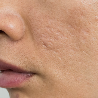 Acne scars on Asian man' face. Close up