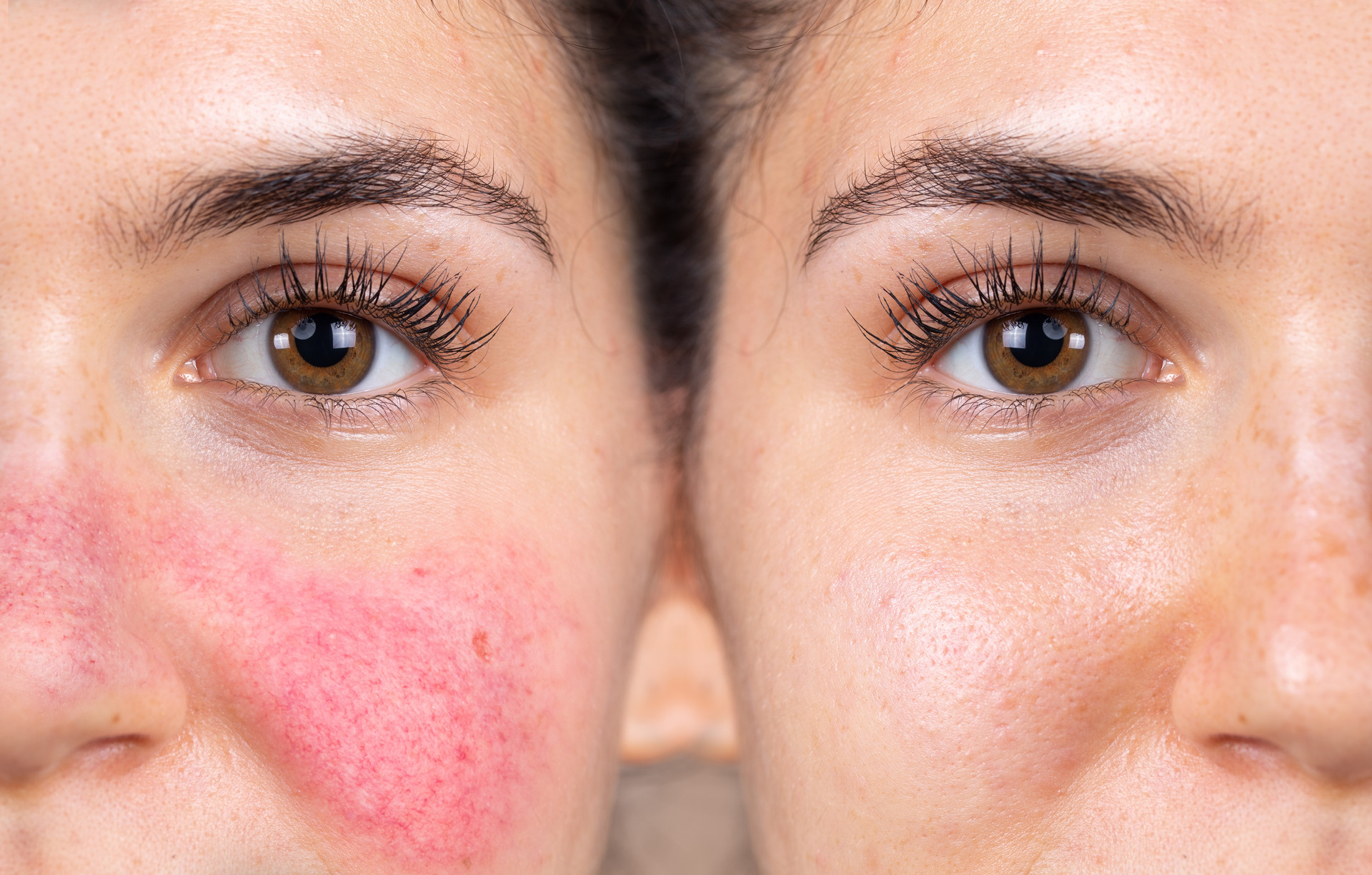 Rosacea after treatment
