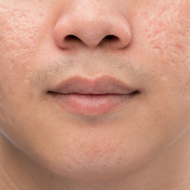 Man with oily skin and acne scars isolat