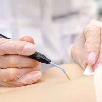 Medical treatment removal of birthmark f