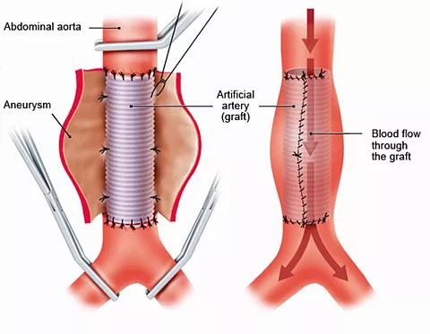 Ανοικτή Χειρουργική Επέμβαση