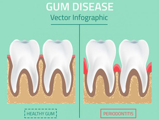 What is Periodontal Disease?