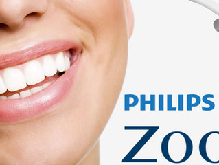 Zoom Whitening: Your Smile is Your Best Accessory