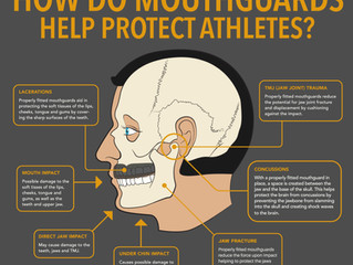 The Importance of Athletic Mouth Guards
