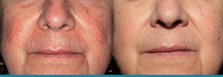 θεραπεία σε ευριαγγειες με λέιζερ, θεραπεία φλεβίτιδας με λέιζερ, veins removal with laser